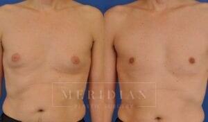 tjelmeland-meridian-austin-gynecomastia-patient-8-1