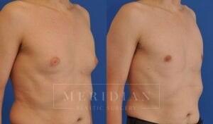 tjelmeland-meridian-austin-gynecomastia-patient-8-2