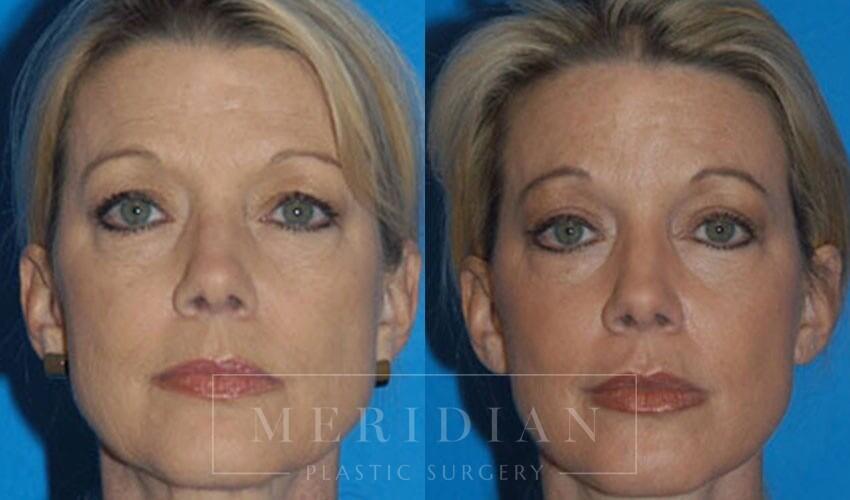 tjelmeland-meridian-austin-injectable-fillers-patient-1-1