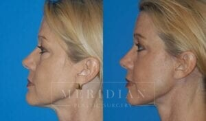 tjelmeland-meridian-austin-injectable-fillers-patient-1-2