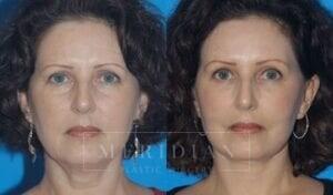 tjelmeland-meridian-austin-injectable-fillers-patient-2-1