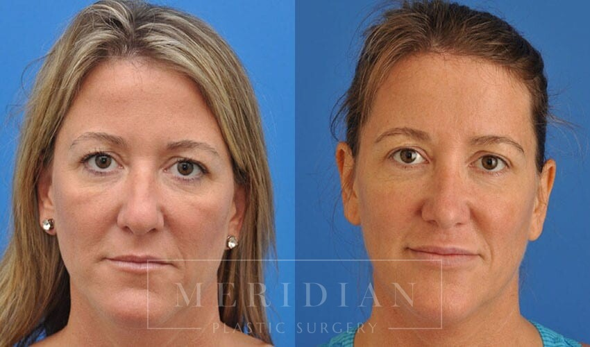 tjelmeland-meridian-austin-injectable-fillers-patient-3-1