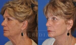 tjelmeland-meridian-austin-injectable-fillers-patient-4-2