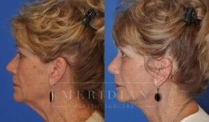 tjelmeland-meridian-austin-injectable-fillers-patient-4-3