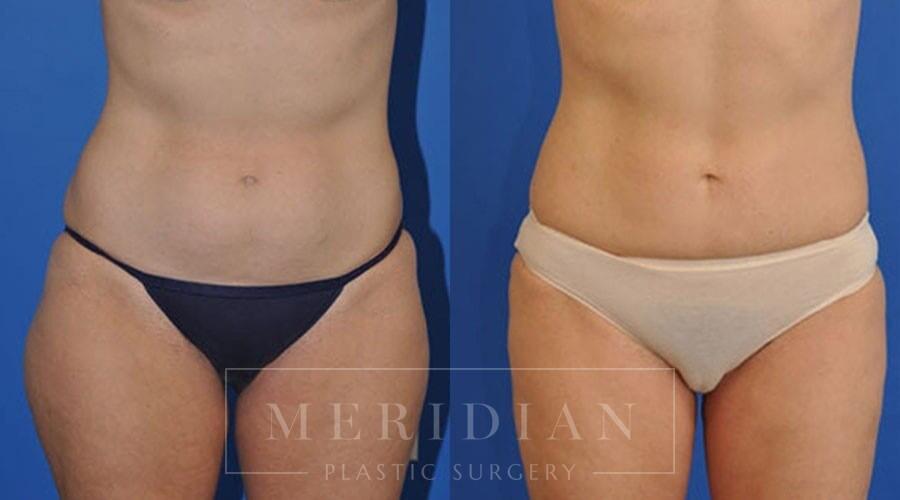 tjelmeland-meridian-austin-liposuction-patient-1-1