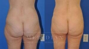 tjelmeland-meridian-austin-liposuction-patient-1-3