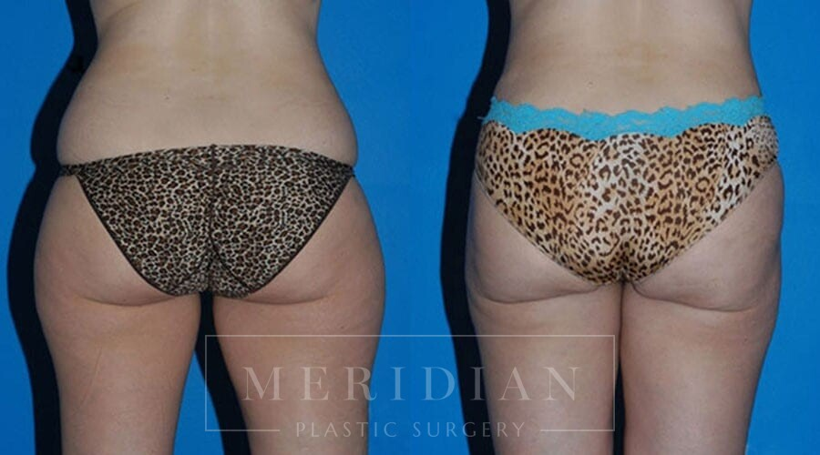 tjelmeland-meridian-austin-liposuction-patient-10-1
