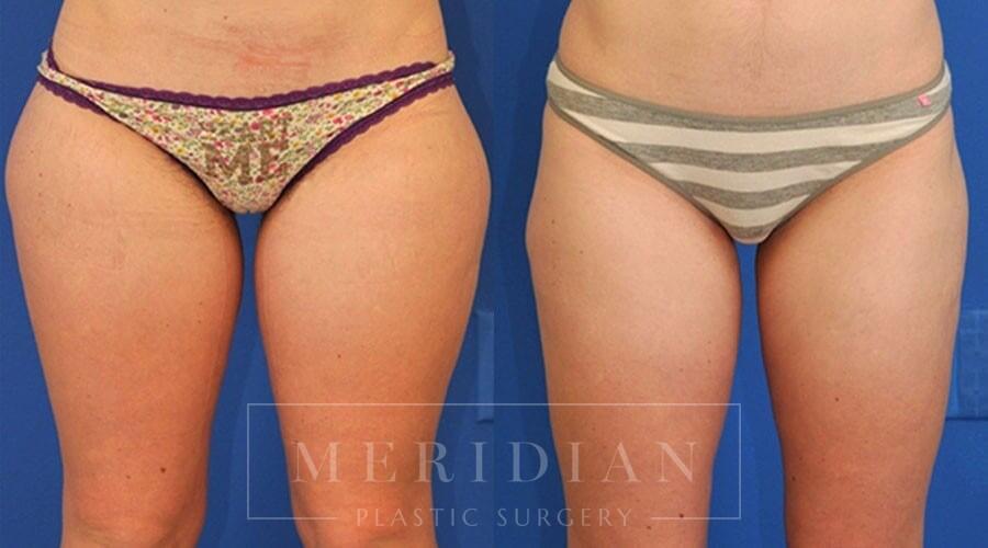 tjelmeland-meridian-austin-liposuction-patient-2-1