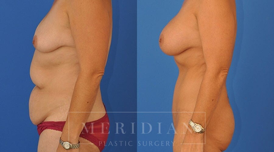 tjelmeland-meridian-austin-liposuction-patient-23-2