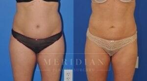 tjelmeland-meridian-austin-liposuction-patient-3-1