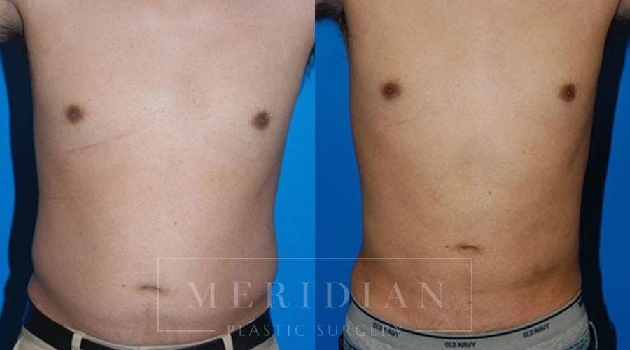tjelmeland-meridian-austin-liposuction-patient-4-1