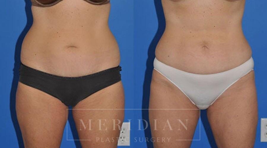 tjelmeland-meridian-austin-liposuction-patient-5-1
