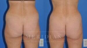 tjelmeland-meridian-austin-liposuction-patient-5-2