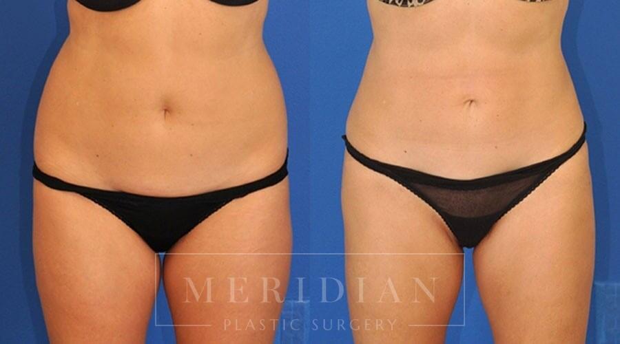 tjelmeland-meridian-austin-liposuction-patient-6-1