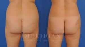 tjelmeland-meridian-austin-liposuction-patient-6-2