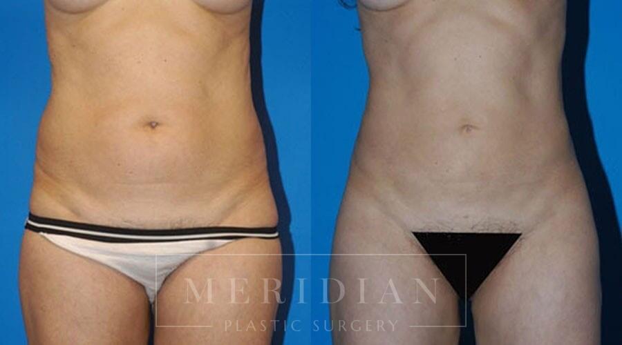 tjelmeland-meridian-austin-liposuction-patient-7-1