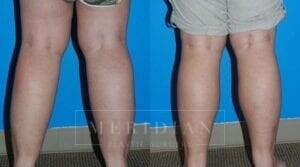 tjelmeland-meridian-austin-liposuction-patient-8-2