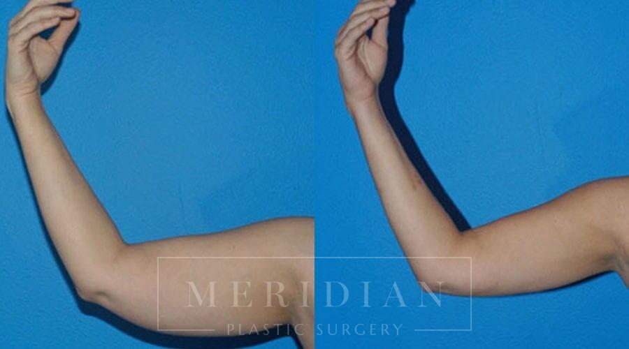 tjelmeland-meridian-austin-liposuction-patient-9-1