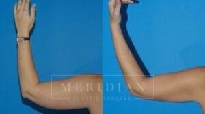 tjelmeland-meridian-austin-liposuction-patient-9-2