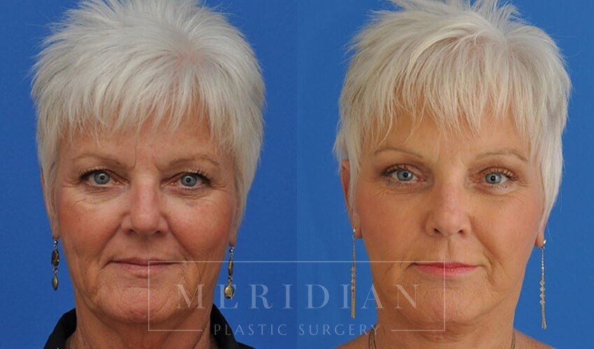 tjelmeland-meridian-austin-neck-lift-patient-1-1