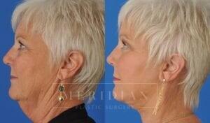 tjelmeland-meridian-austin-neck-lift-patient-1-2