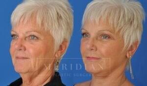 tjelmeland-meridian-austin-neck-lift-patient-1-3
