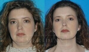 tjelmeland-meridian-austin-neck-lift-patient-2-1