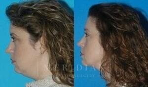 tjelmeland-meridian-austin-neck-lift-patient-2-2
