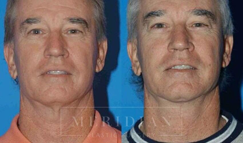 tjelmeland-meridian-austin-neck-lift-patient-3-1
