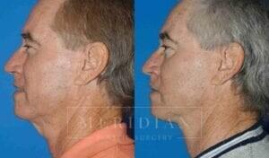 tjelmeland-meridian-austin-neck-lift-patient-3-2