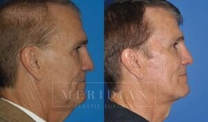 tjelmeland-meridian-austin-neck-lift-patient-4-2