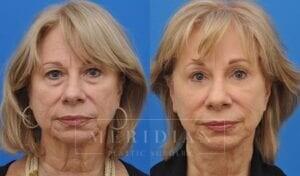 tjelmeland-meridian-austin-neck-lift-patient-6-1