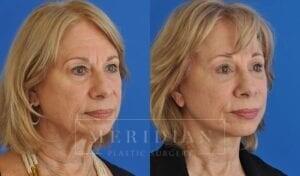 tjelmeland-meridian-austin-neck-lift-patient-6-2