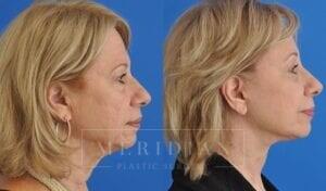 tjelmeland-meridian-austin-neck-lift-patient-6-3