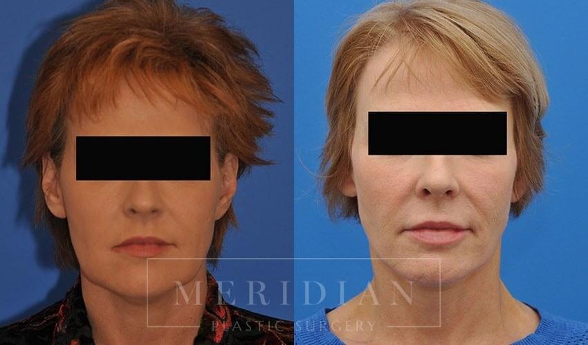 tjelmeland-meridian-austin-neck-lift-patient-7-1