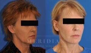 tjelmeland-meridian-austin-neck-lift-patient-7-2