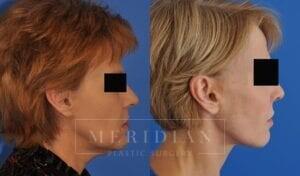 tjelmeland-meridian-austin-neck-lift-patient-7-3