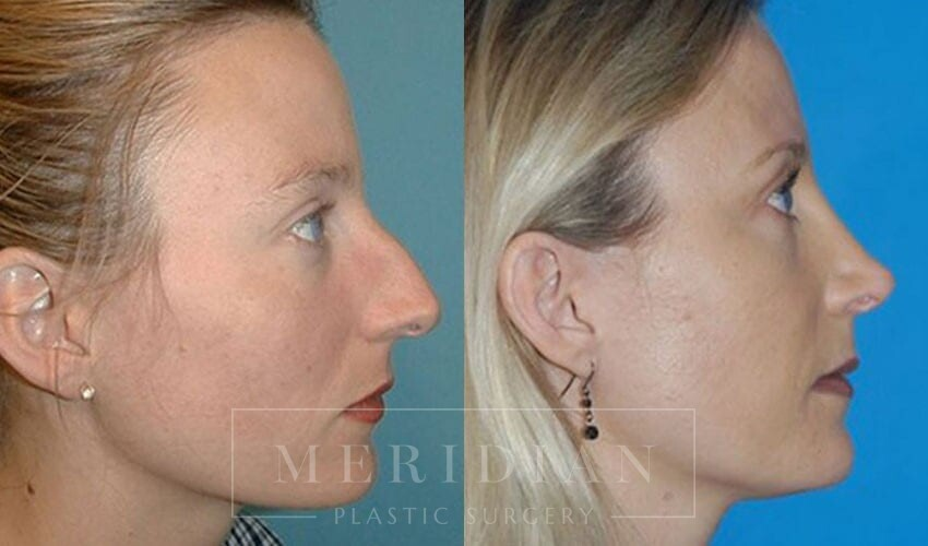 tjelmeland-meridian-austin-rhinoplasty-patient-1-1