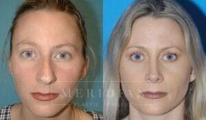 tjelmeland-meridian-austin-rhinoplasty-patient-1-2