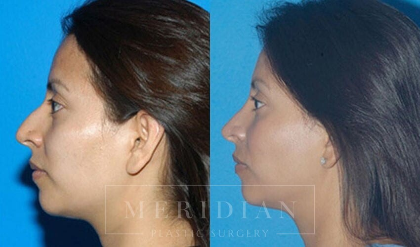 tjelmeland-meridian-austin-rhinoplasty-patient-2-1