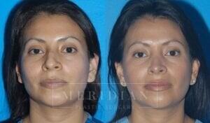 tjelmeland-meridian-austin-rhinoplasty-patient-2-2