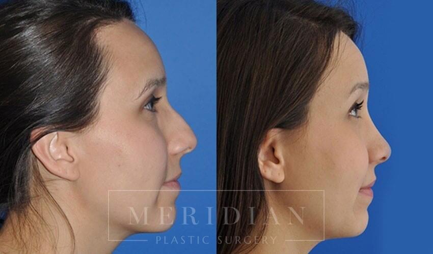 tjelmeland-meridian-austin-rhinoplasty-patient-3-1