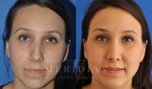 tjelmeland-meridian-austin-rhinoplasty-patient-3-2