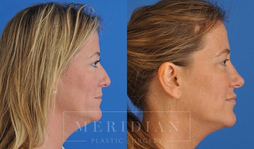 tjelmeland-meridian-austin-rhinoplasty-patient-4-1