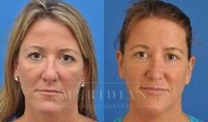 tjelmeland-meridian-austin-rhinoplasty-patient-4-2
