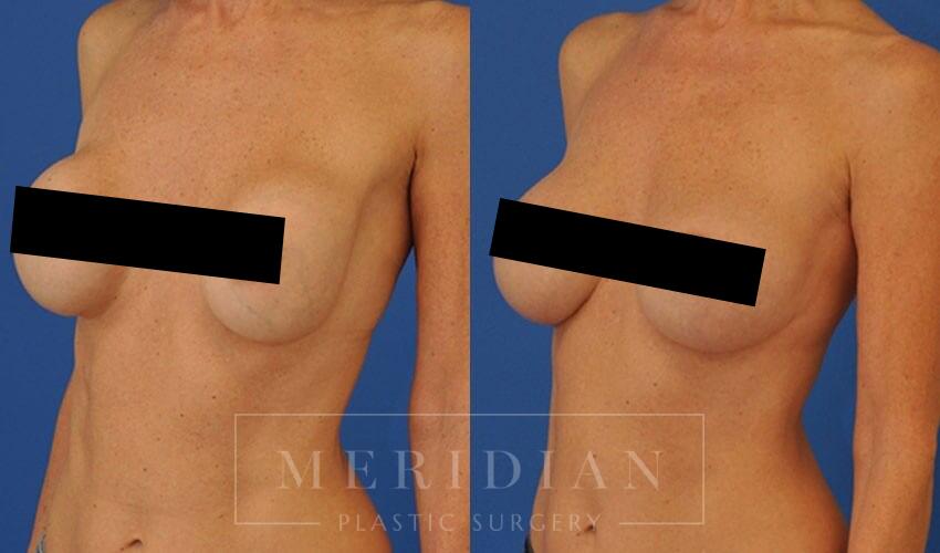 tjelmeland-meridian-austin-breast-revision-patient-2-2censored